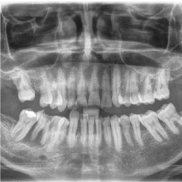 especialidad de periodoncia en queretaro